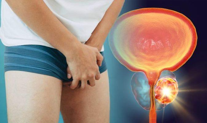 Рак простаты у ВИЧ-положительных мужчин встречается на 24% реже, чем у  ВИЧ-отрицательных | Парни ПЛЮС
